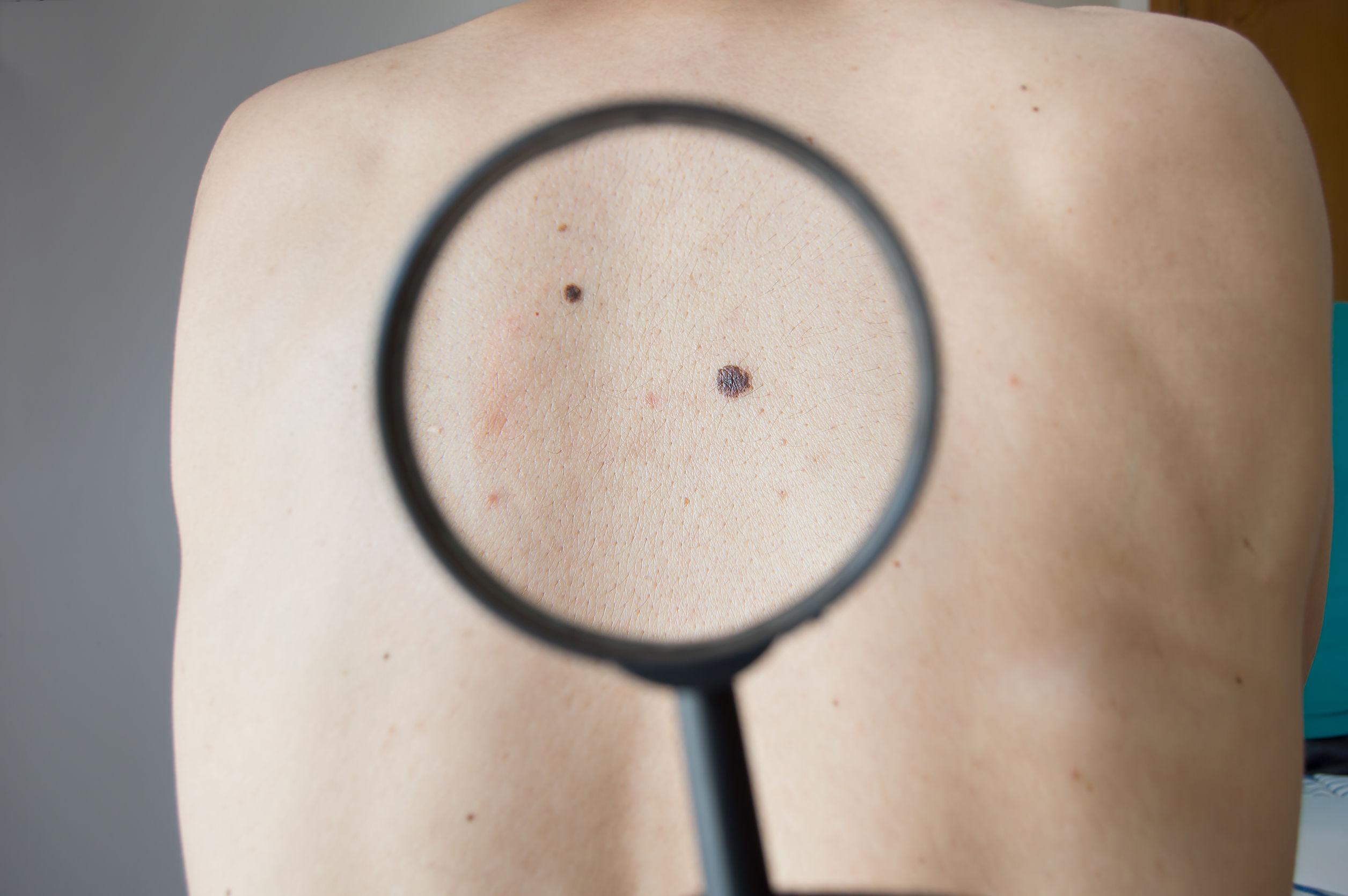 Saiba mais sobre o tratamento e a prevenção do câncer de pele e do melanoma