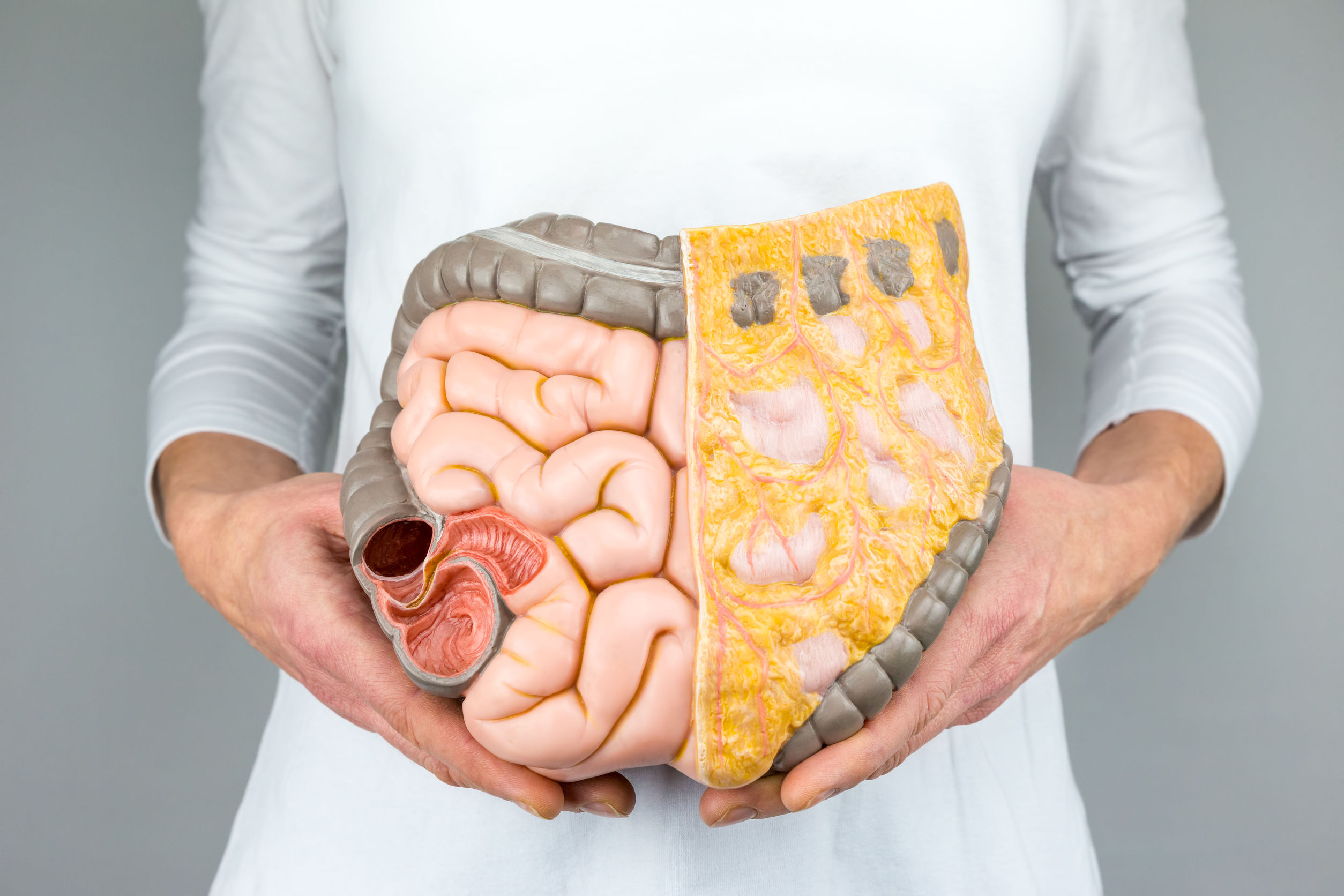 9 sintomas do câncer de cólon e reto