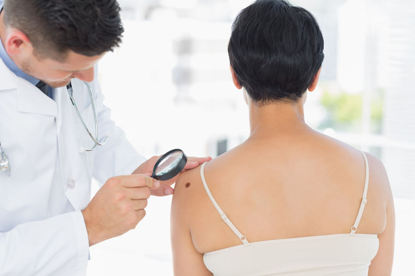 Entenda como é o tratamento do melanoma