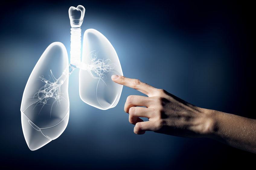 câncer no pulmão