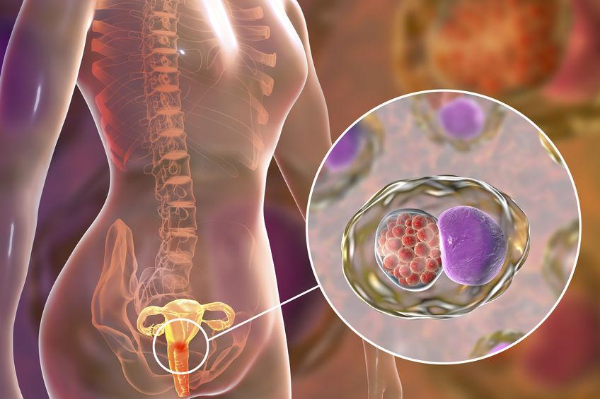 Tratamento cirúrgico do câncer de colo do útero