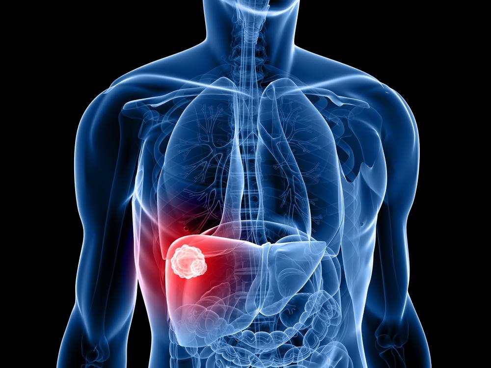 câncer no fígado