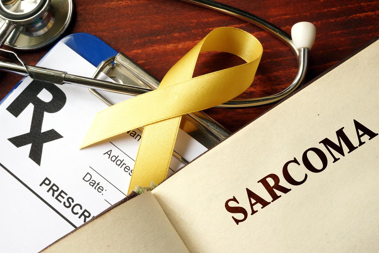 Sarcoma de Kaposi: sintomas, causas e tratamentos