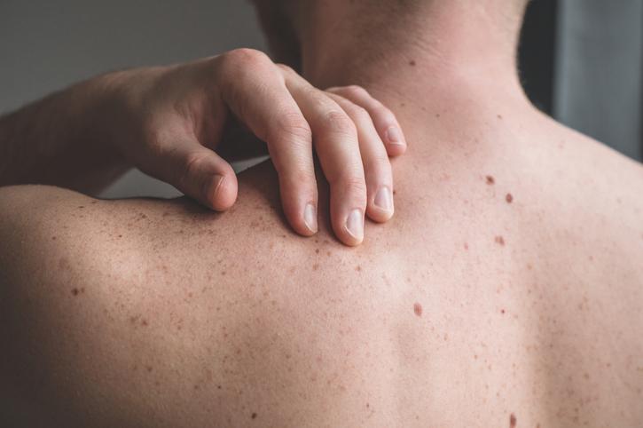 câncer de pele melanoma