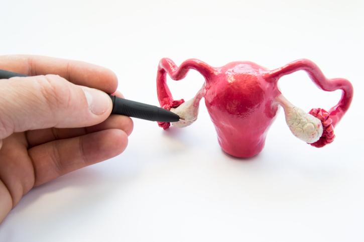 retirada do ovário